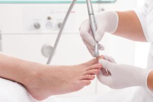Häufig vorkommende Nagelerkrankungen bis hin zu Nagelmykosen