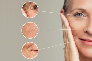 Hautalterung  - Ursachen und Lösungen